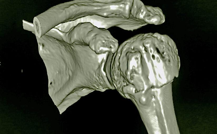 menschliche Schulter in 3D, CT